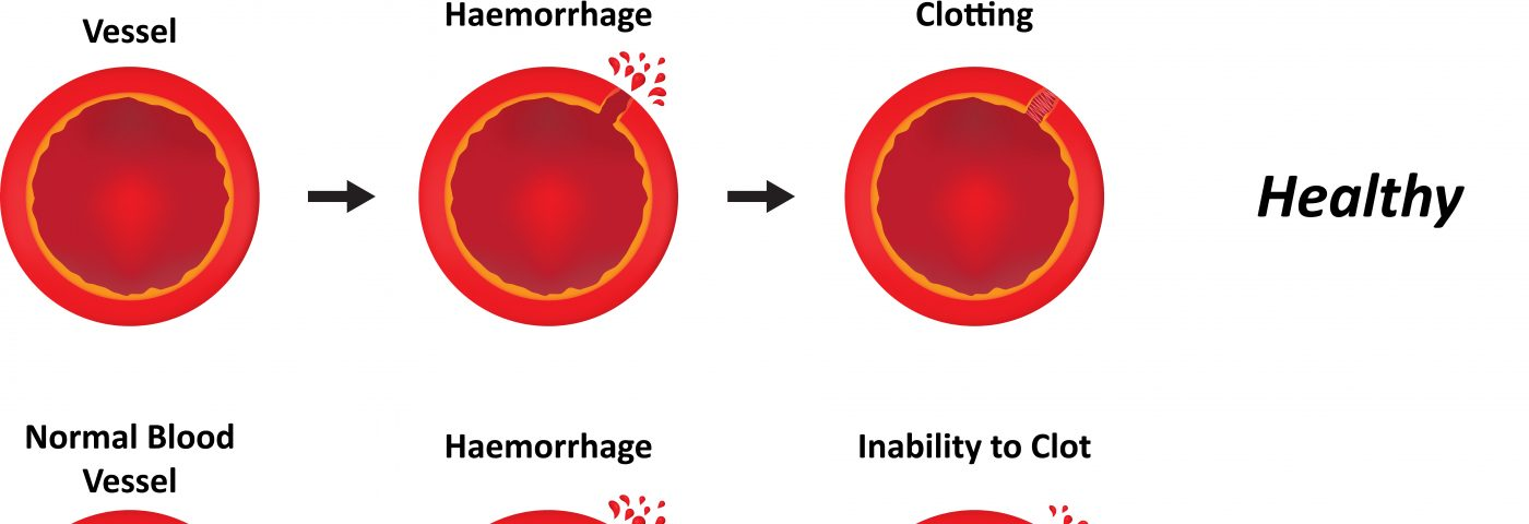 Hemophilia B Is Less Severe than Hemophilia A, Suggesting Therapeutic Differences