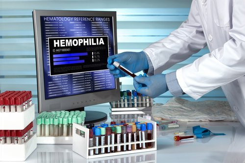 Certain B-Cells in Spleen Show Potential as Therapeutic Targets to Reduce FVIII Inhibitors in Hemophilia A, Study Shows