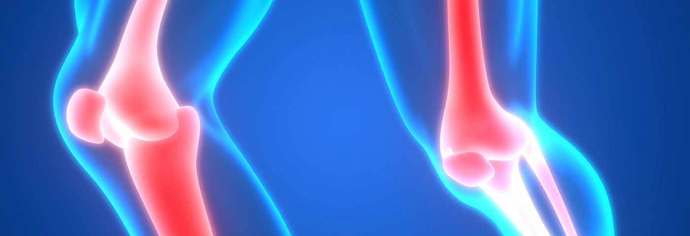 Eloctate Improves Joint Health in Hemophilia A, Phase 3 Study Shows