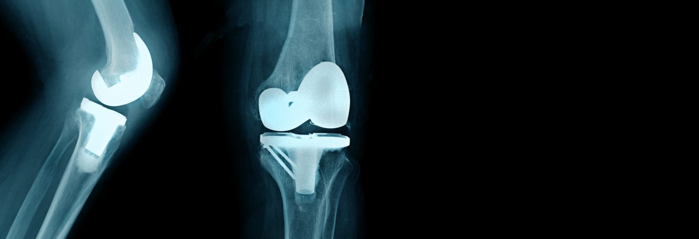 Bilateral Total Knee Arthroplasty in Hemophilia Patients is Safe and Cost-Effective, Study Suggests