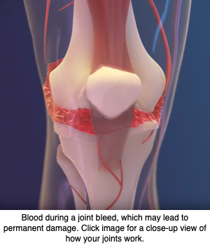 FVIII Gene Therapy Directly into Joints May Best Protect Against Damage